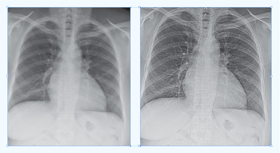 The standard x-ray image (left) is not well defined, but after Digital Harmonic's technology is applied, the processed image (right) is much clearer.